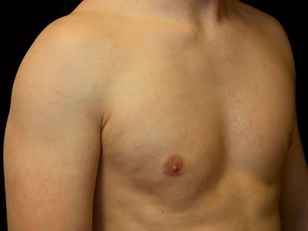 Gynecomastia Gallery - Patient 39352853 - Image 4