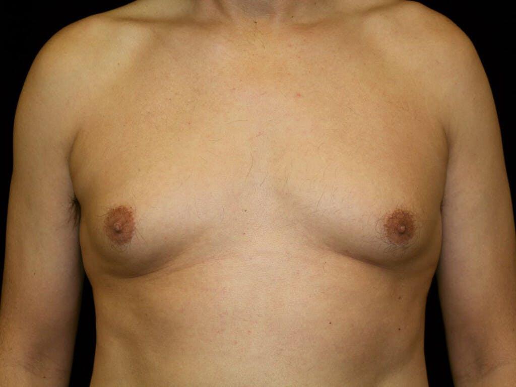 Gynecomastia Gallery - Patient 39352861 - Image 1