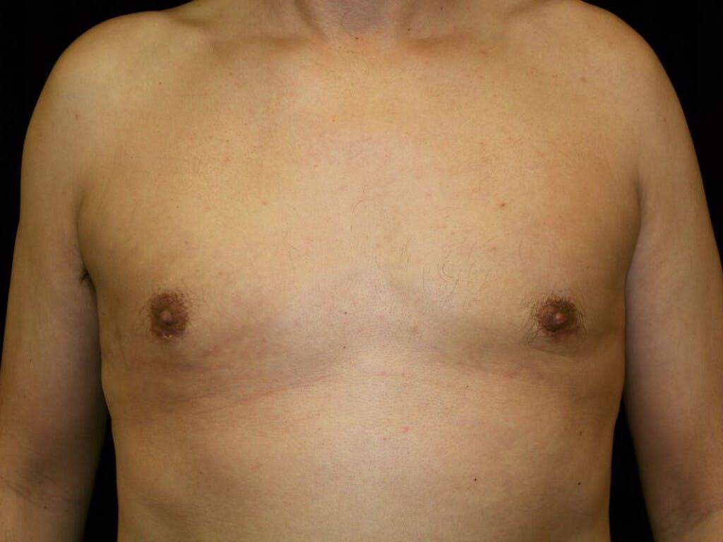 Gynecomastia Gallery - Patient 39352861 - Image 2