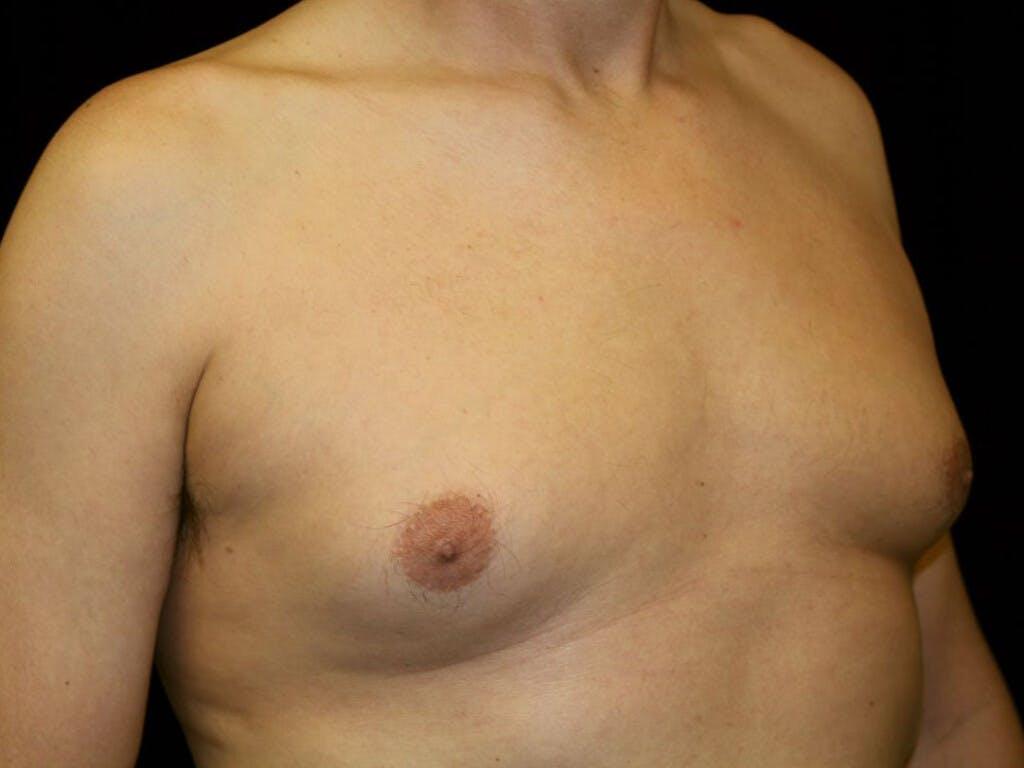 Gynecomastia Gallery - Patient 39352861 - Image 3