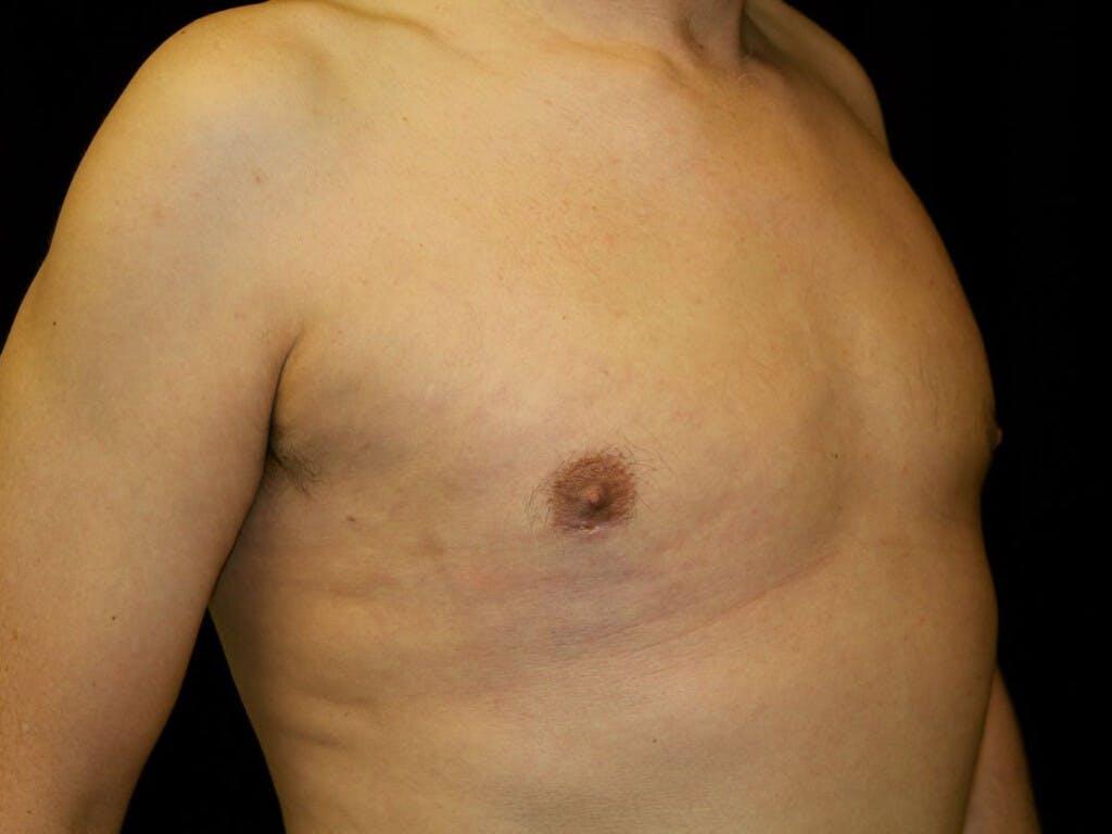Gynecomastia Gallery - Patient 39352861 - Image 4