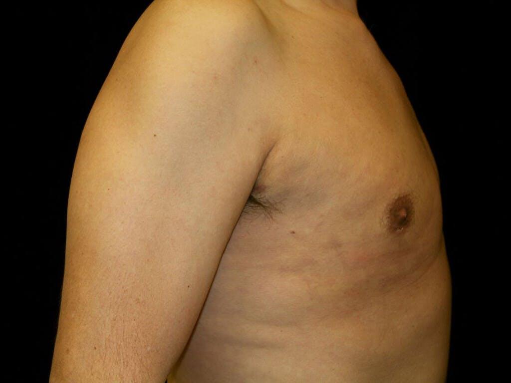 Gynecomastia Gallery - Patient 39352861 - Image 6