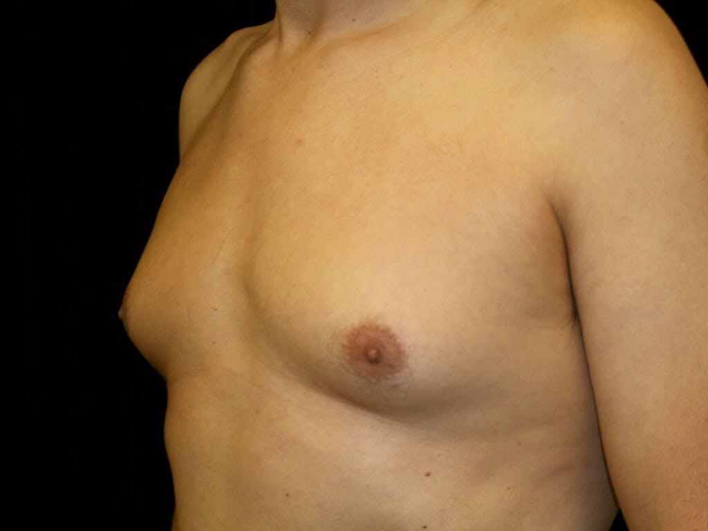 Gynecomastia Gallery - Patient 39352861 - Image 7