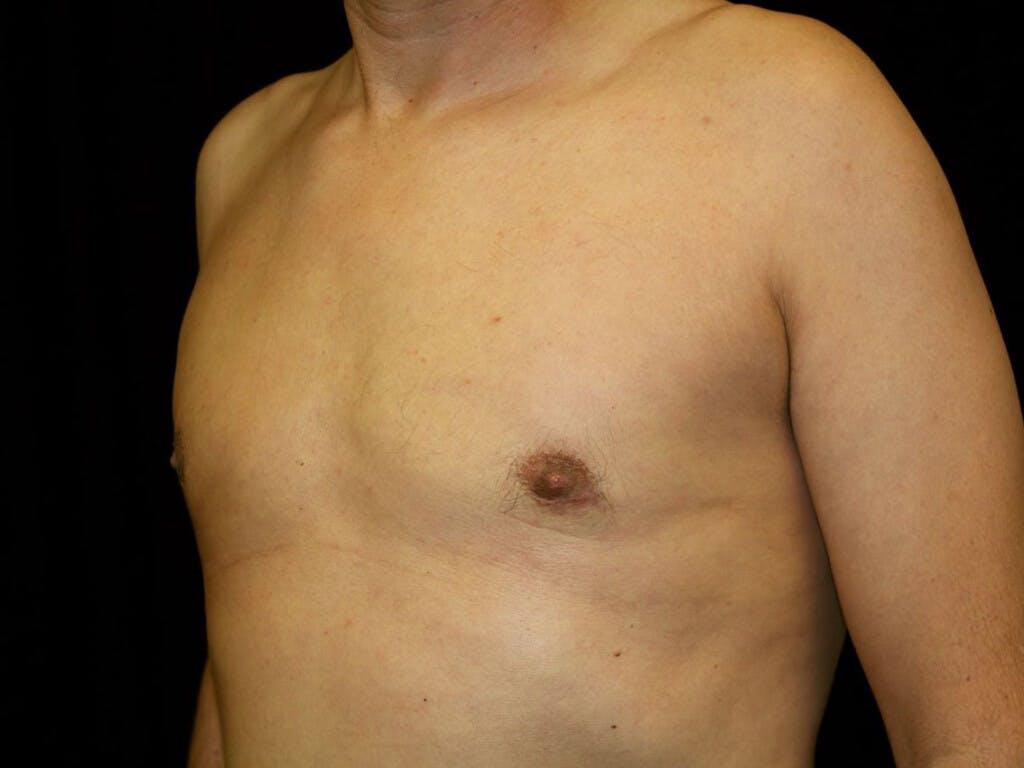 Gynecomastia Gallery - Patient 39352861 - Image 8