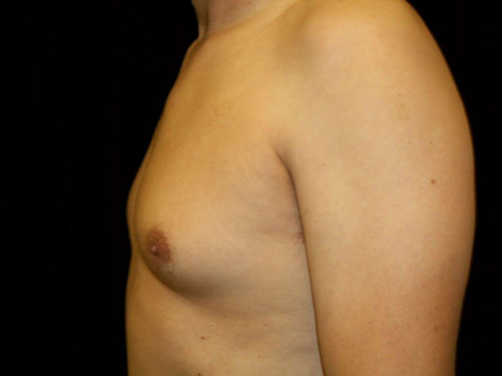Gynecomastia Gallery - Patient 39352861 - Image 9
