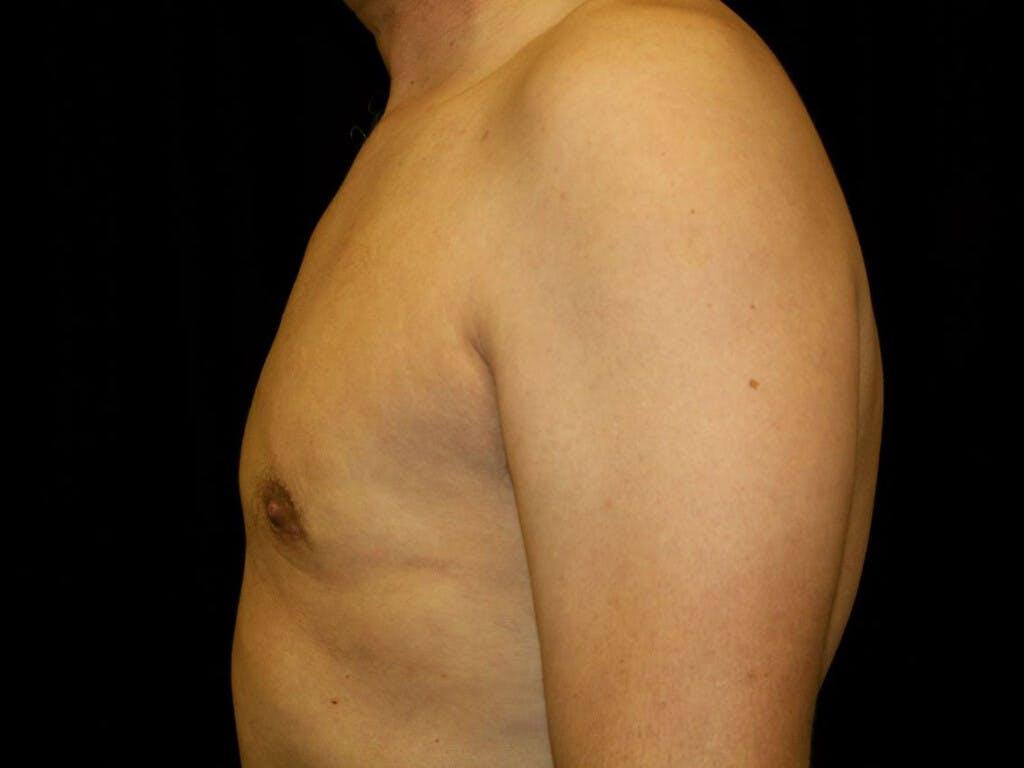 Gynecomastia Gallery - Patient 39352861 - Image 10