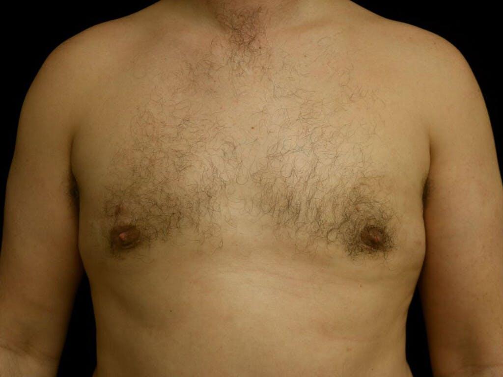 Gynecomastia Gallery - Patient 39352862 - Image 2