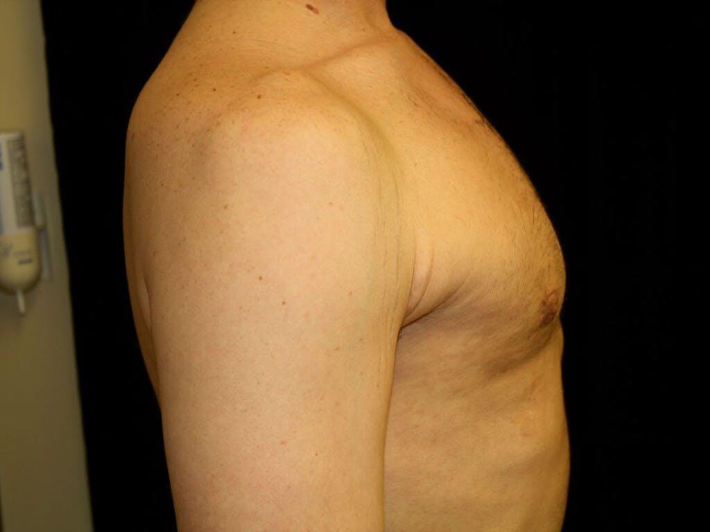 Gynecomastia Gallery - Patient 39352868 - Image 6