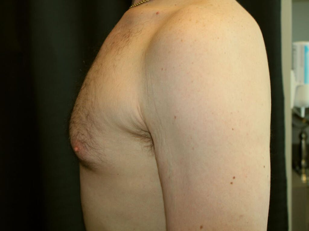 Gynecomastia Gallery - Patient 39352868 - Image 9