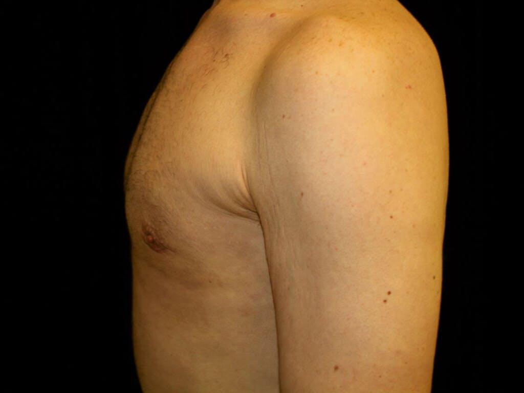 Gynecomastia Gallery - Patient 39352868 - Image 10