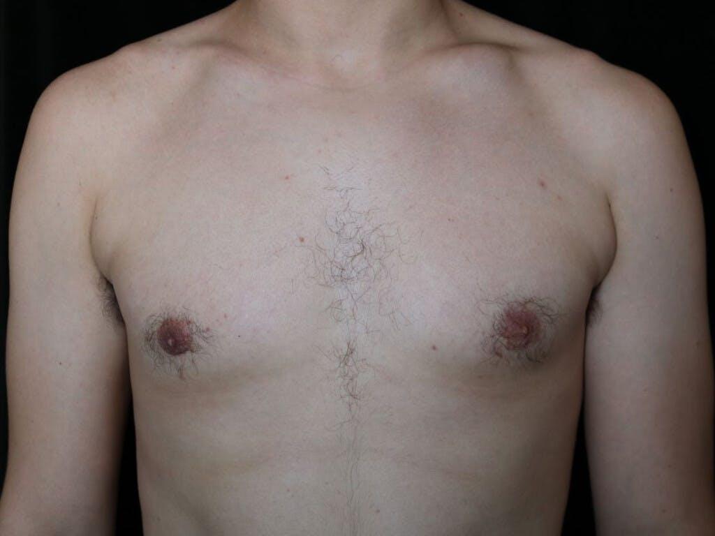 Gynecomastia Gallery - Patient 39352874 - Image 2