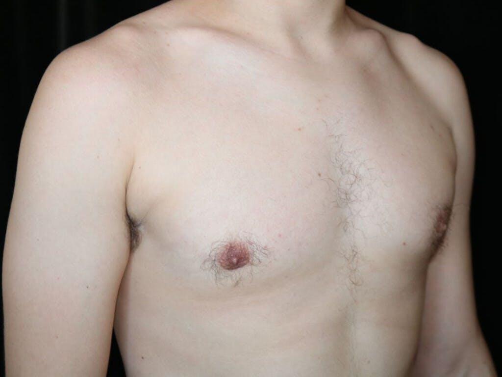 Gynecomastia Gallery - Patient 39352874 - Image 4
