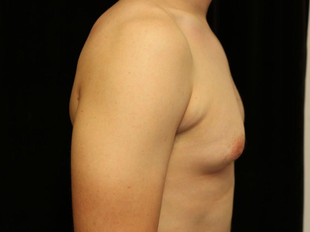 Gynecomastia Gallery - Patient 39352874 - Image 5