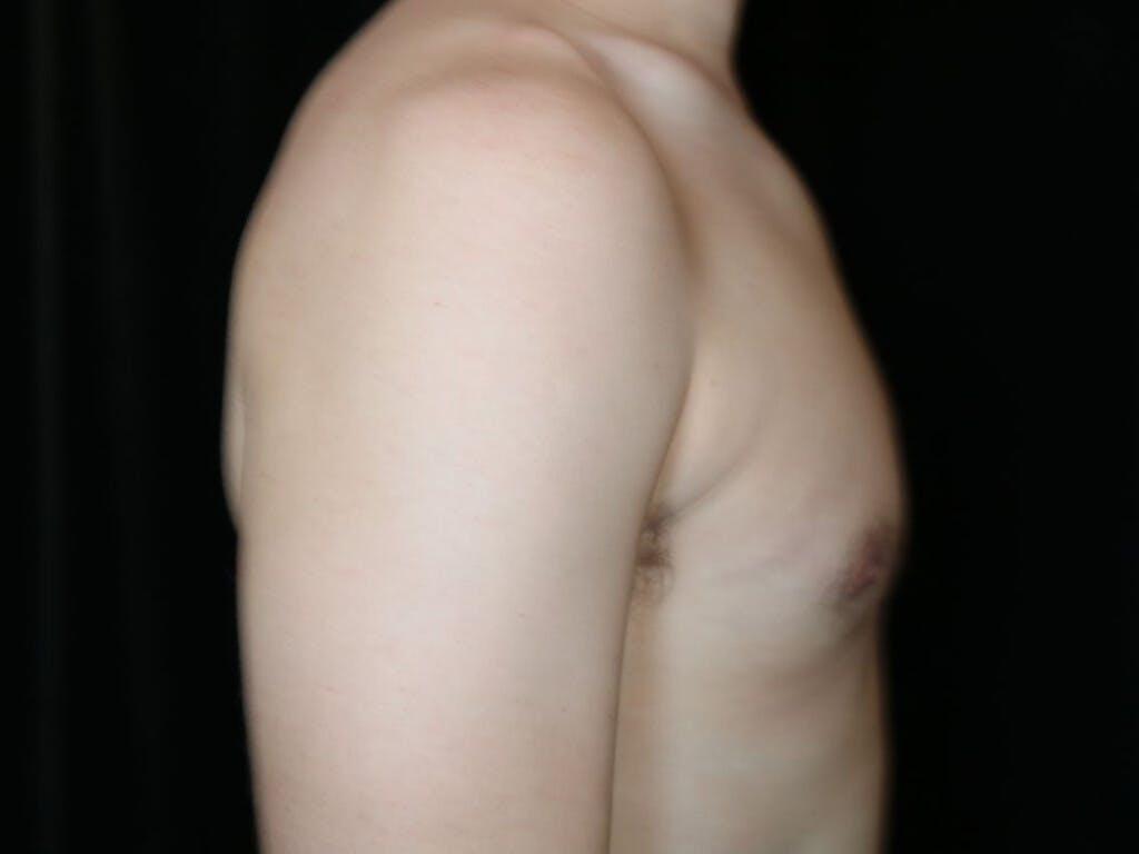 Gynecomastia Gallery - Patient 39352874 - Image 6