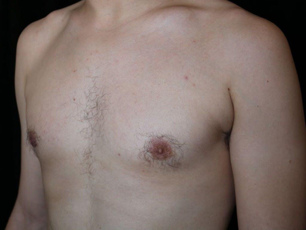 Gynecomastia Gallery - Patient 39352874 - Image 8