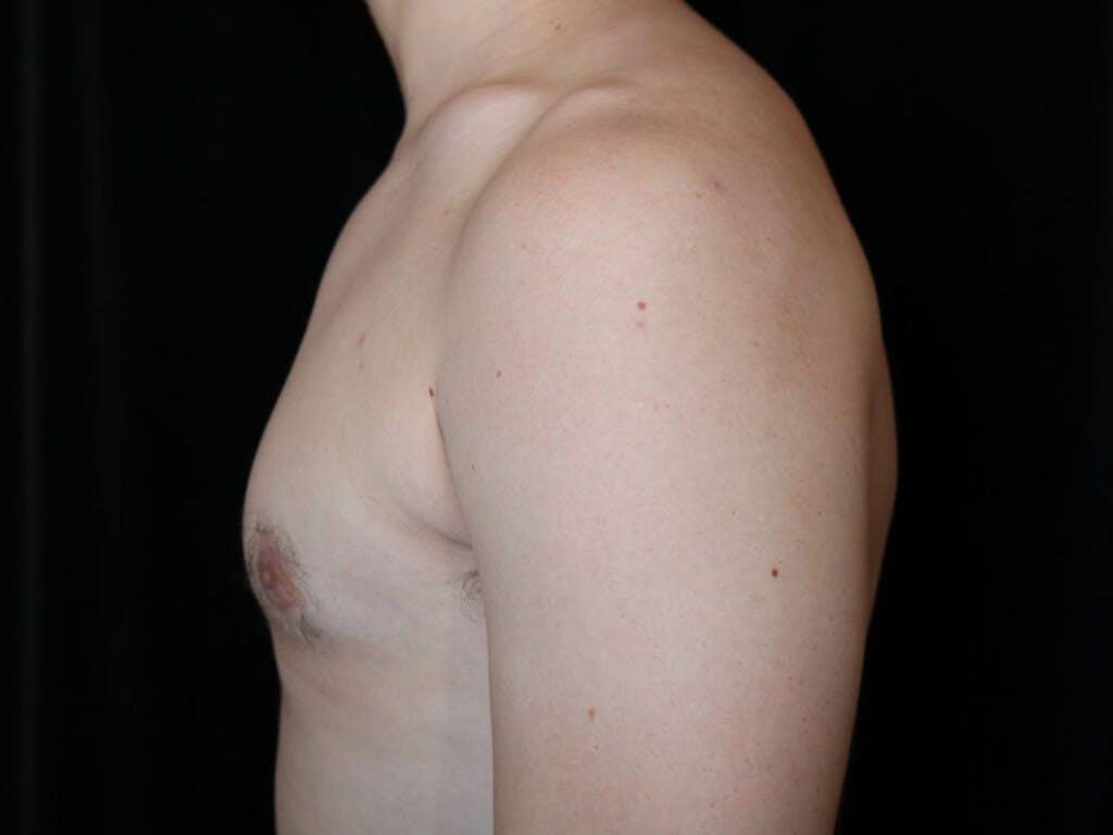 Gynecomastia Gallery - Patient 39352874 - Image 10