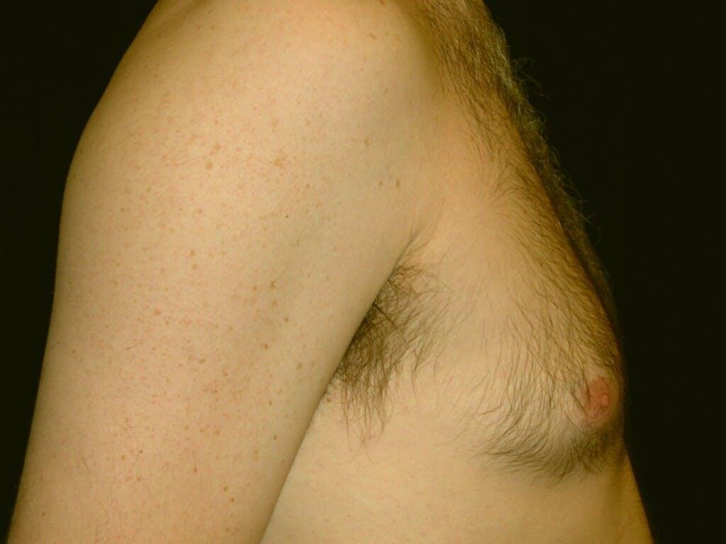 Gynecomastia Gallery - Patient 39352891 - Image 3