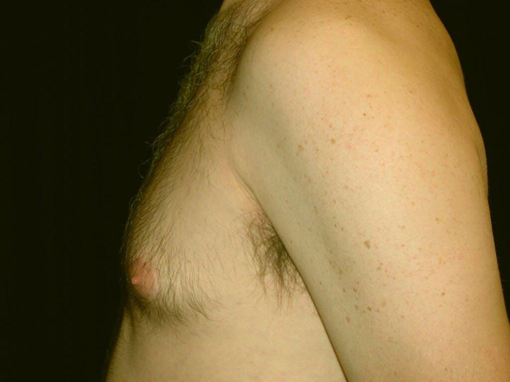 Gynecomastia Gallery - Patient 39352891 - Image 5