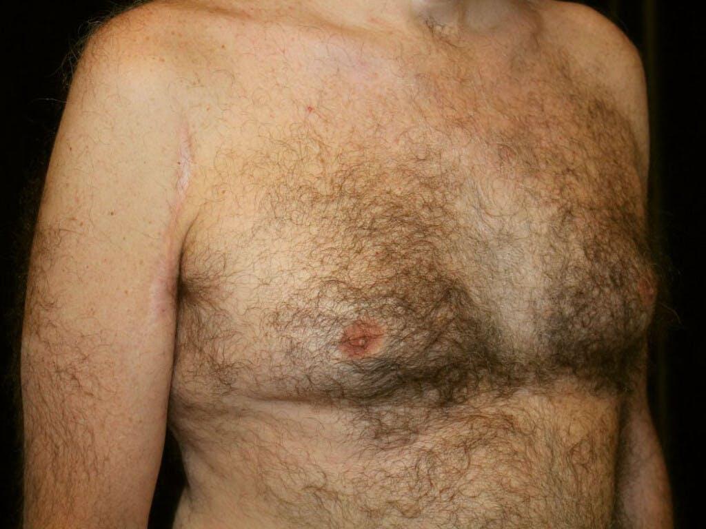 Gynecomastia Gallery - Patient 39352892 - Image 3