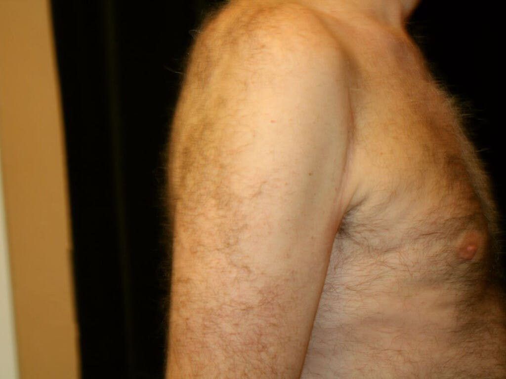 Gynecomastia Gallery - Patient 39352892 - Image 8