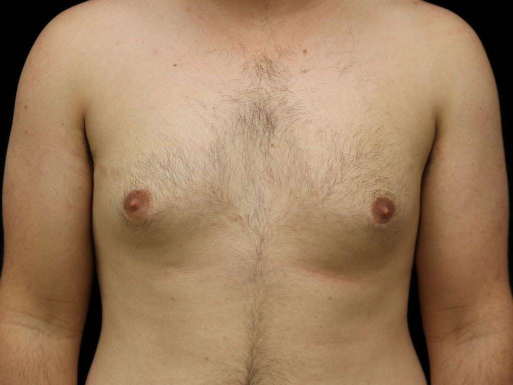 Gynecomastia Gallery - Patient 39352903 - Image 1