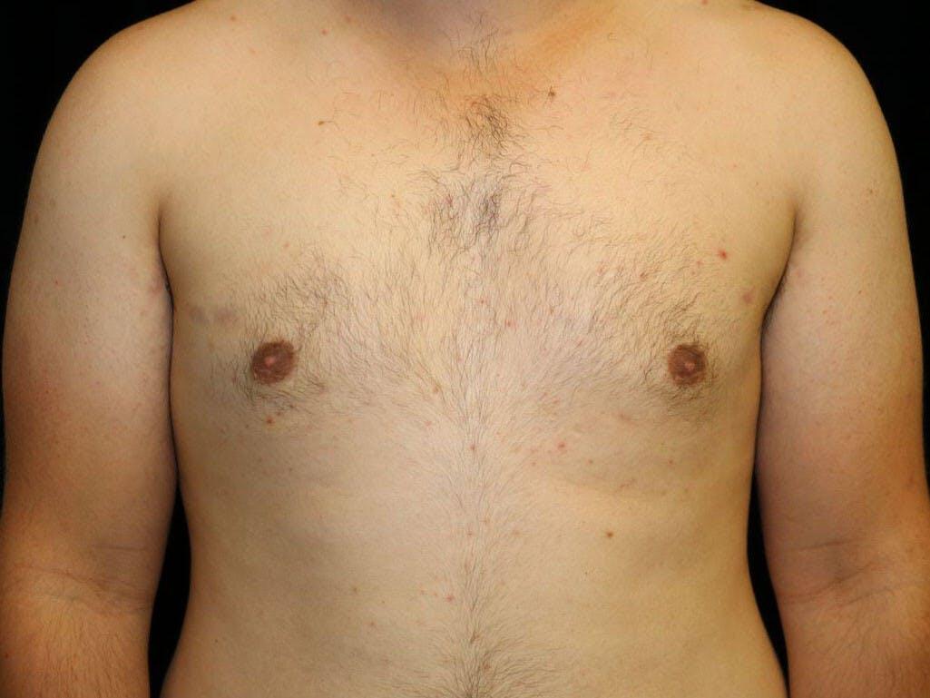 Gynecomastia Gallery - Patient 39352903 - Image 2