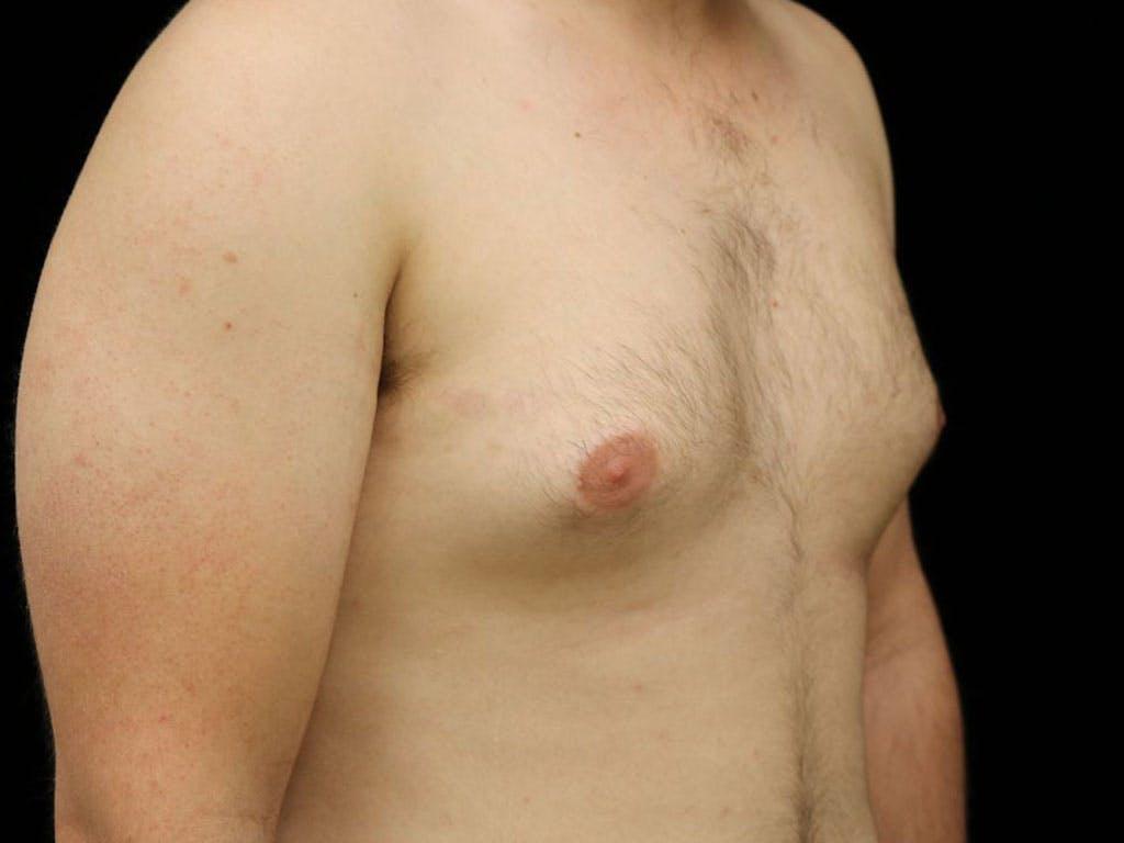 Gynecomastia Gallery - Patient 39352903 - Image 3