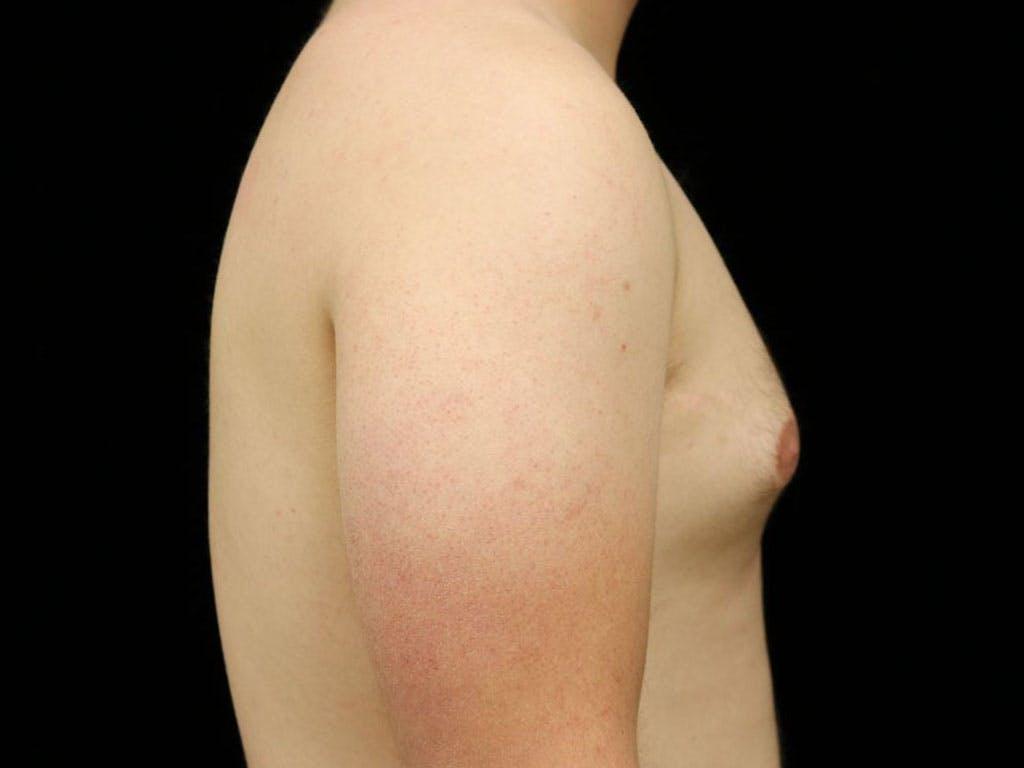 Gynecomastia Gallery - Patient 39352903 - Image 5