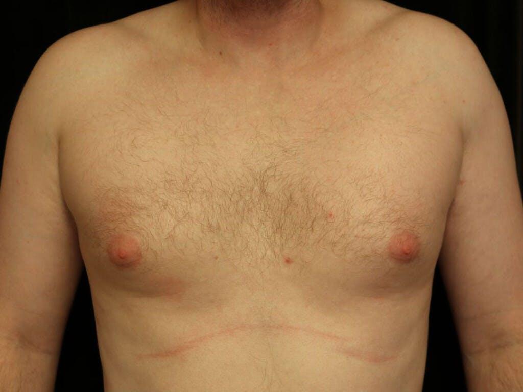 Gynecomastia Gallery - Patient 39352913 - Image 1