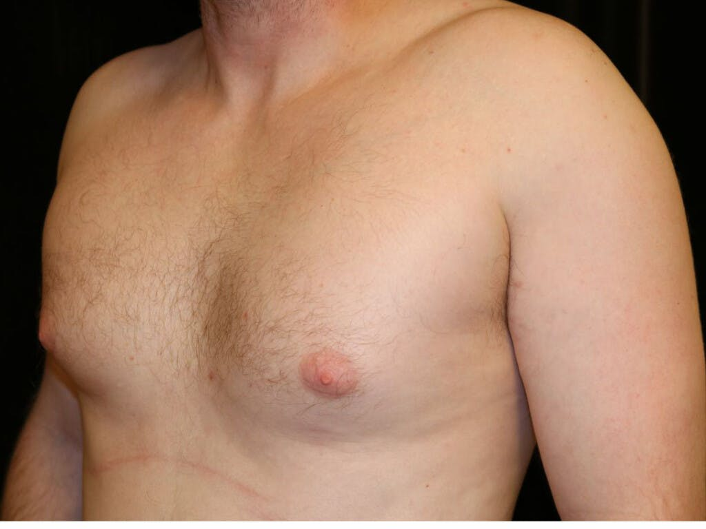 Gynecomastia Gallery - Patient 39352913 - Image 5