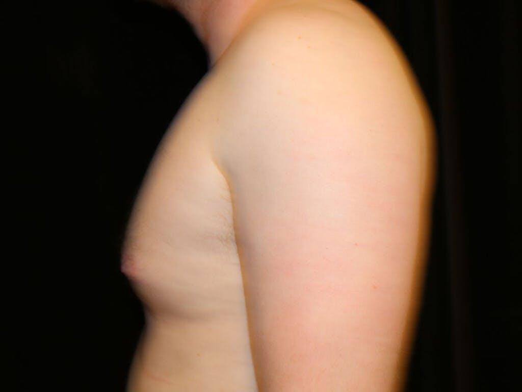 Gynecomastia Gallery - Patient 39352913 - Image 7