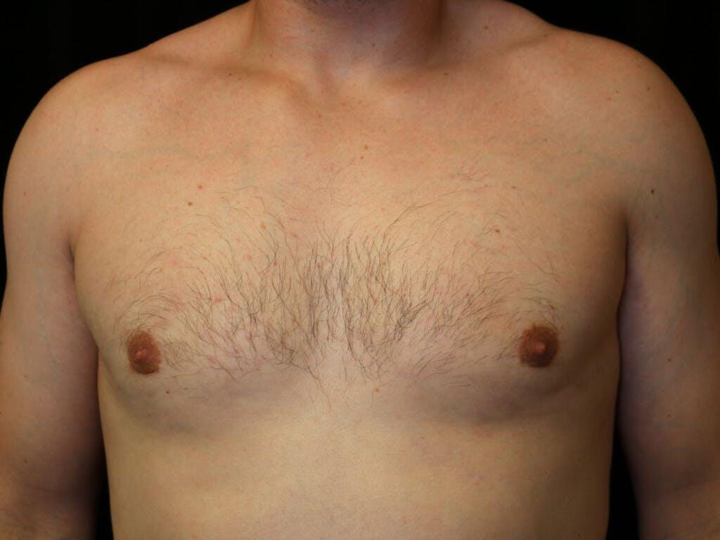 Gynecomastia Gallery - Patient 39352928 - Image 2