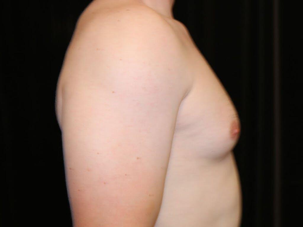 Gynecomastia Gallery - Patient 39352928 - Image 5