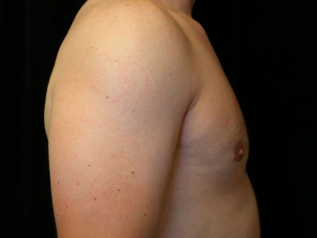 Gynecomastia Gallery - Patient 39352928 - Image 6