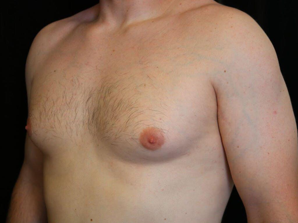 Gynecomastia Gallery - Patient 39352928 - Image 7