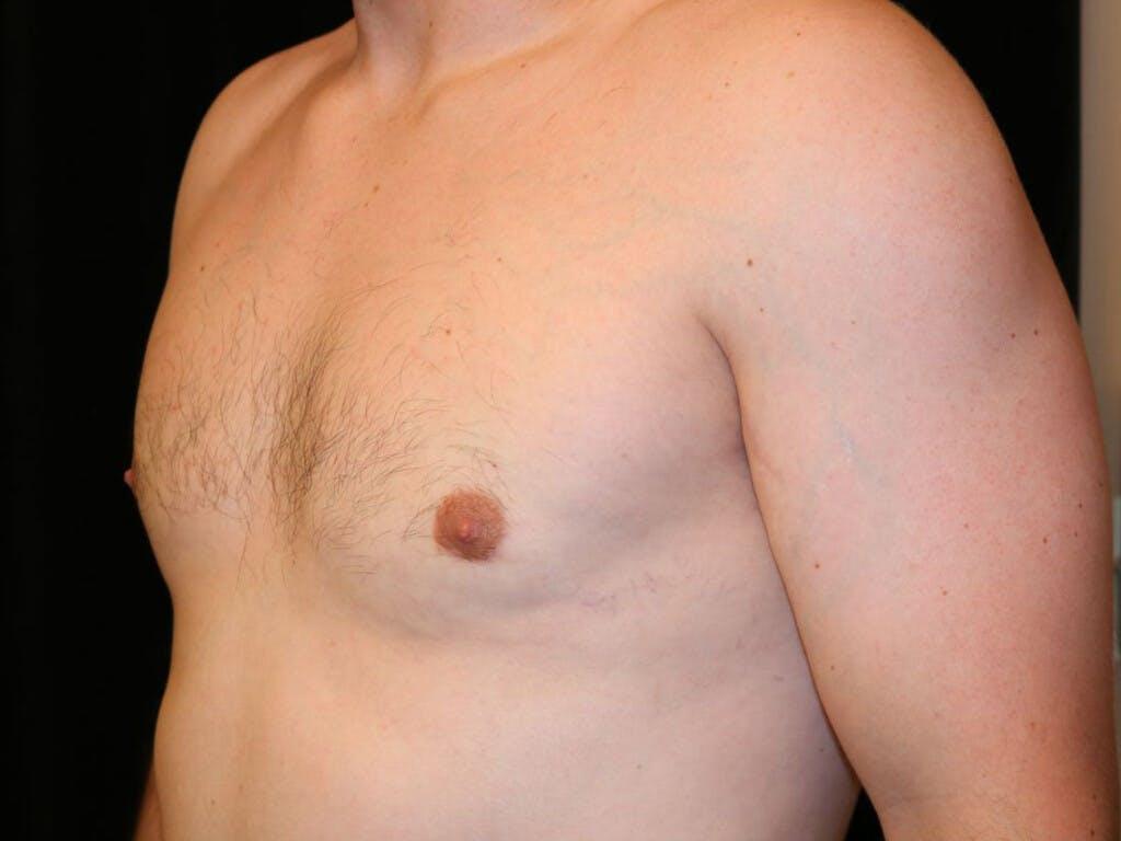 Gynecomastia Gallery - Patient 39352928 - Image 8