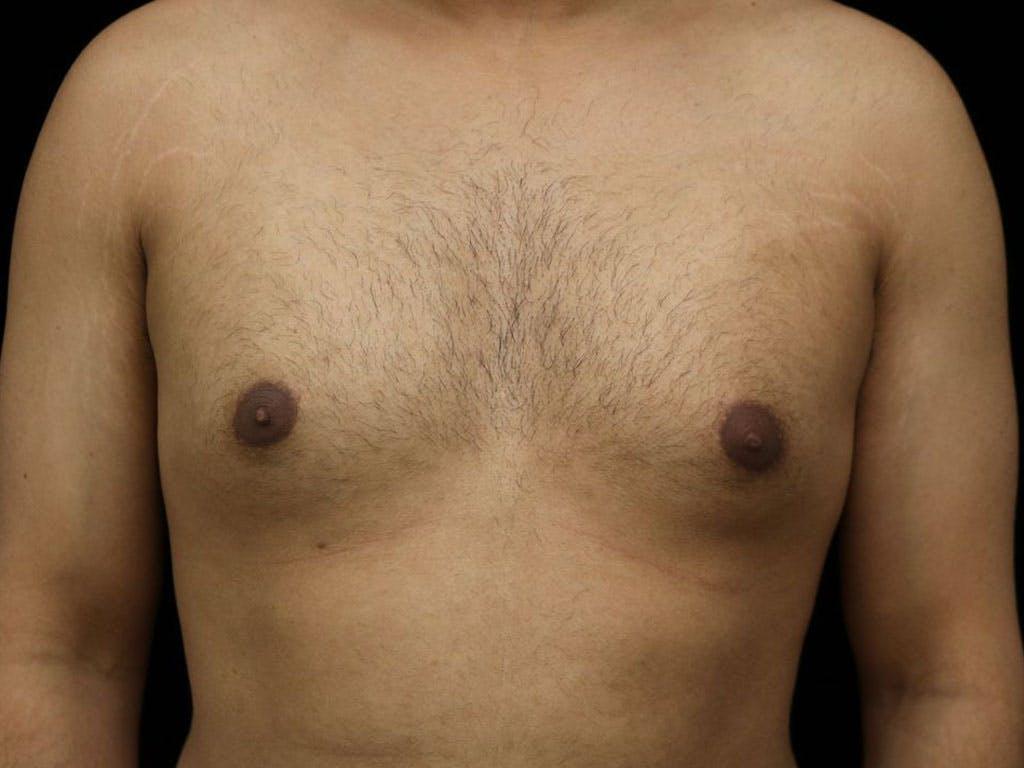 Gynecomastia Gallery - Patient 39352935 - Image 1