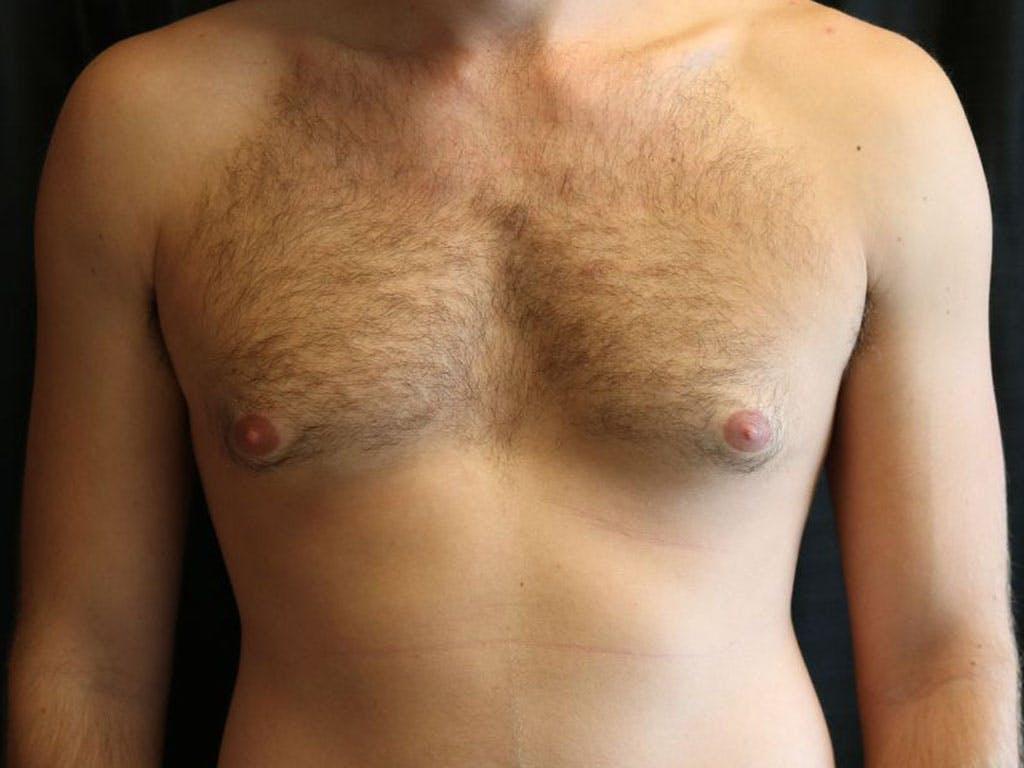 Gynecomastia Gallery - Patient 39352997 - Image 1