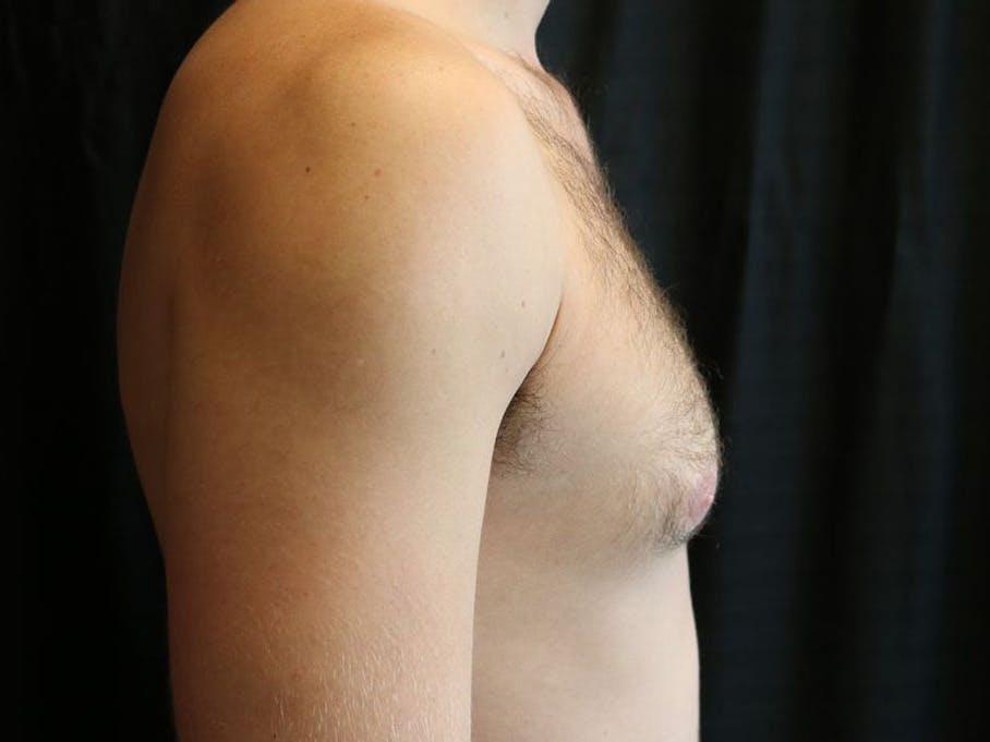Gynecomastia Gallery - Patient 39352997 - Image 5