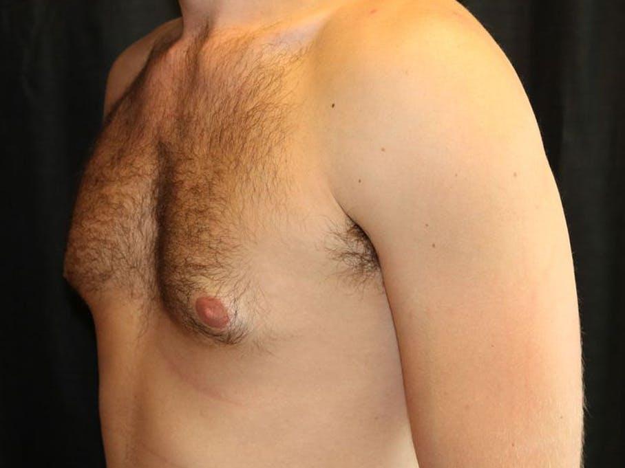 Gynecomastia Gallery - Patient 39352997 - Image 7