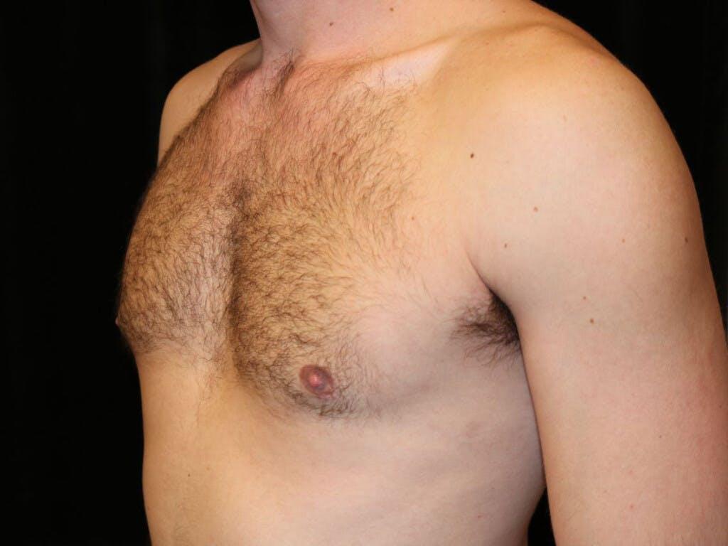 Gynecomastia Gallery - Patient 39352997 - Image 8