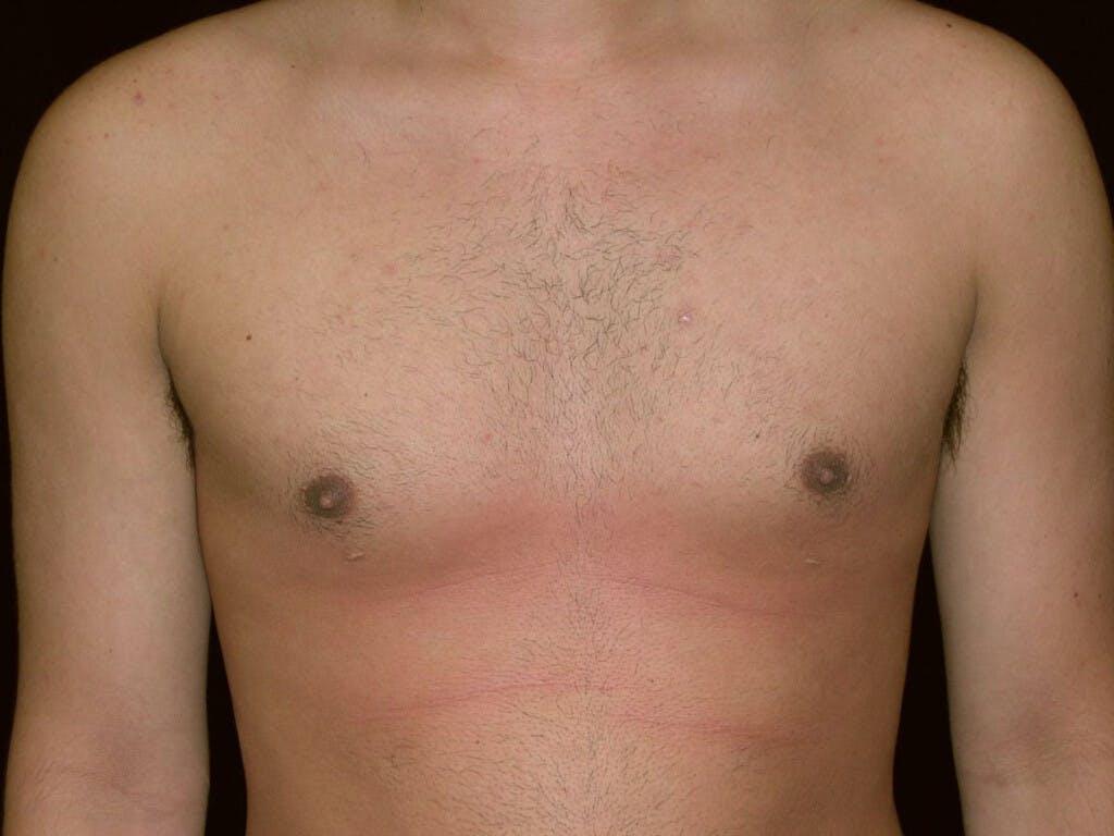 Gynecomastia Gallery - Patient 39353010 - Image 2