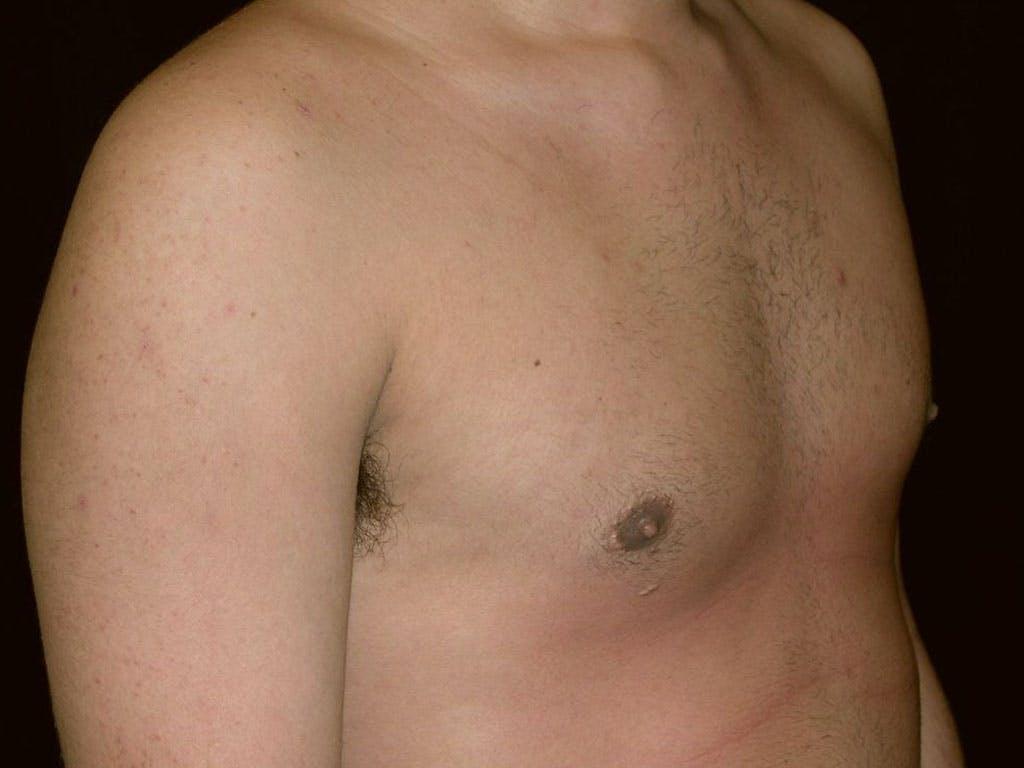 Gynecomastia Gallery - Patient 39353010 - Image 4