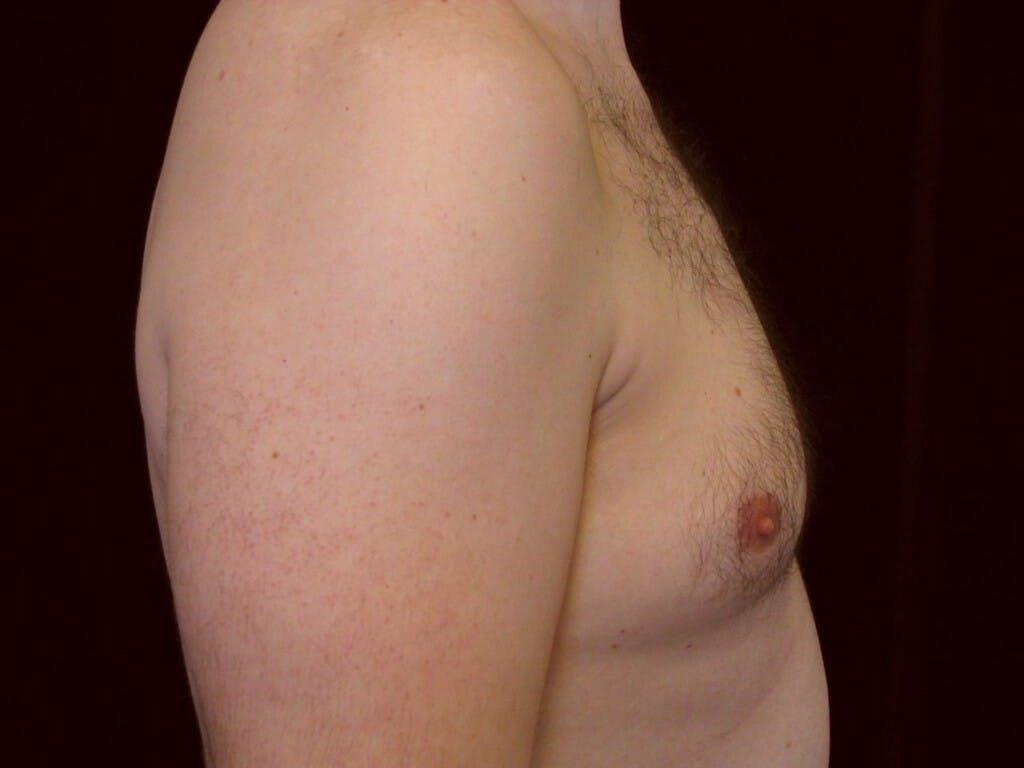 Gynecomastia Gallery - Patient 39353018 - Image 3