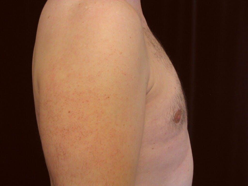 Gynecomastia Gallery - Patient 39353018 - Image 4