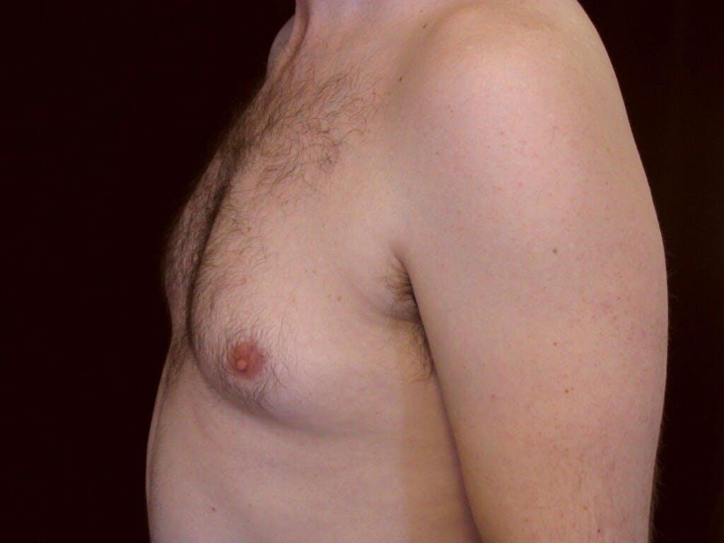 Gynecomastia Gallery - Patient 39353018 - Image 5