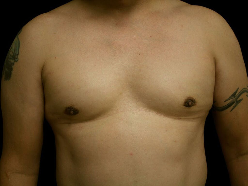 Gynecomastia Gallery - Patient 39353028 - Image 2