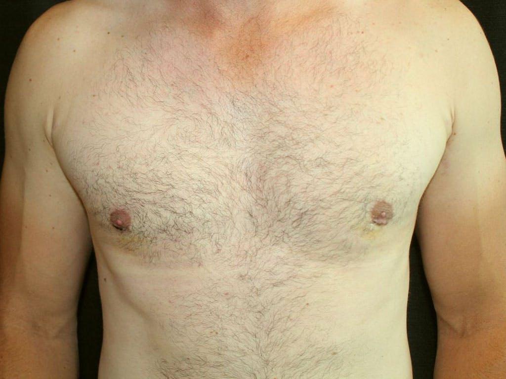 Gynecomastia Gallery - Patient 39353063 - Image 2