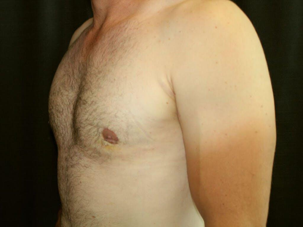 Gynecomastia Gallery - Patient 39353063 - Image 6