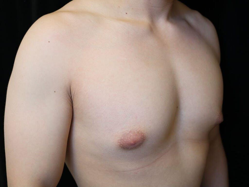 Gynecomastia Gallery - Patient 39353067 - Image 3